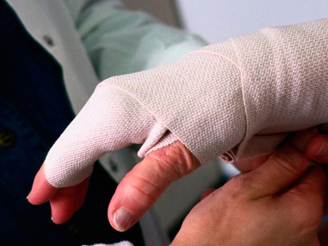 Отсутствие пальцев