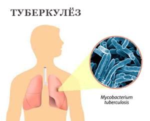 Туберкулез и армия